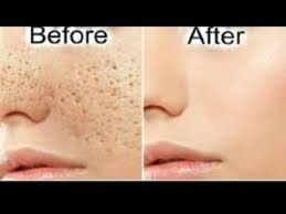 GET RID OF LARGE PORES PERMANENTLY IN ONE WEEK